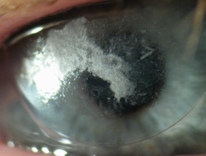 Why You Should Replace Your Contact Lenses